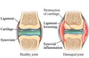 Dog joint problems arthritis inflammation